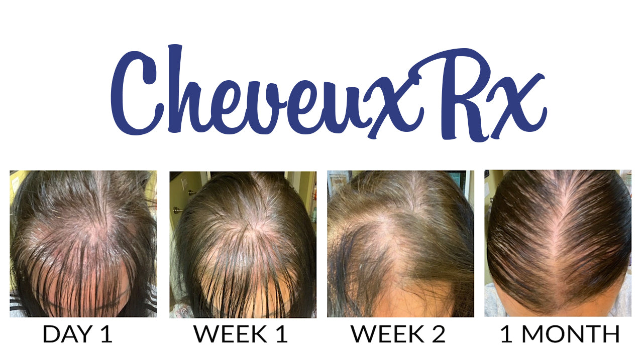 Hair Growth Transformation With CheveuxRx Hair Vitamins