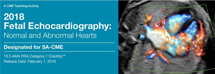 Fetal Echocardiography 2018 Normal and Abnormal Hearts