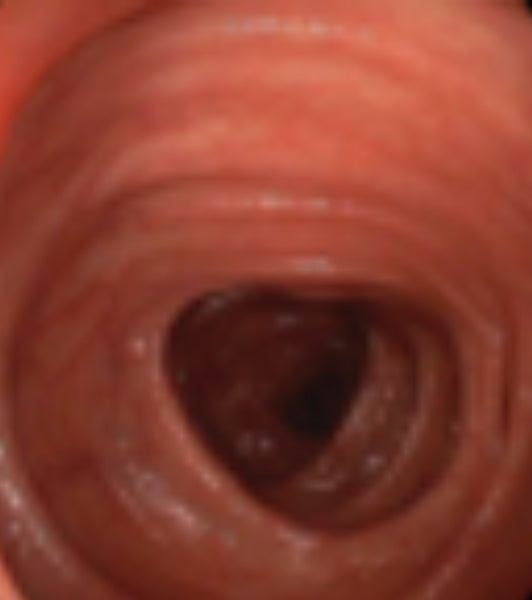 Esophagus (Healthy)