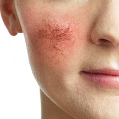 Rosacea, All You Need to Know