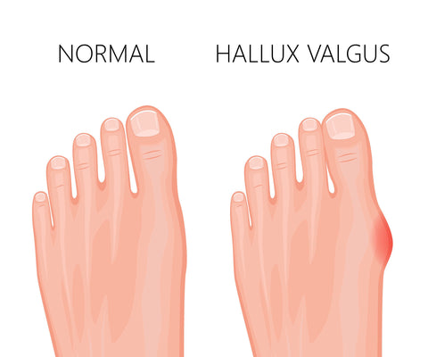 Bunion and shoes that good for bunions