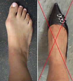 Point toe shoes and high heels make bunions problem worse