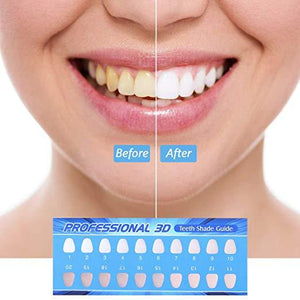 UV Teeth Whitening Kit