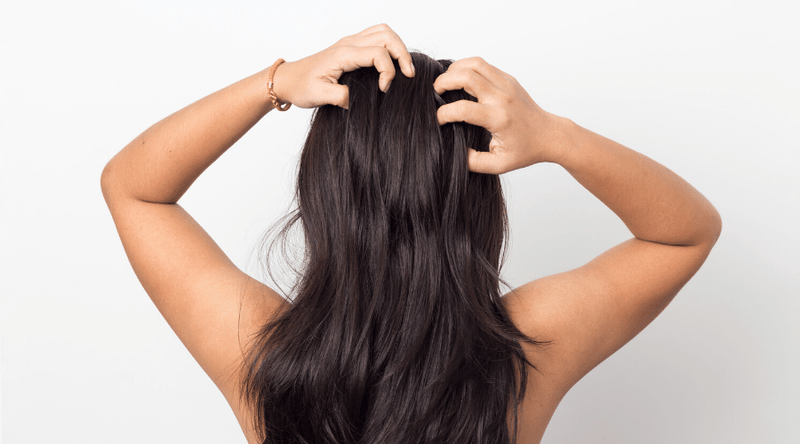 Itchy Scalp Relief for women and men