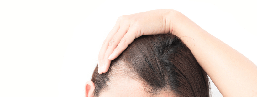 Reasons for hair loss in women