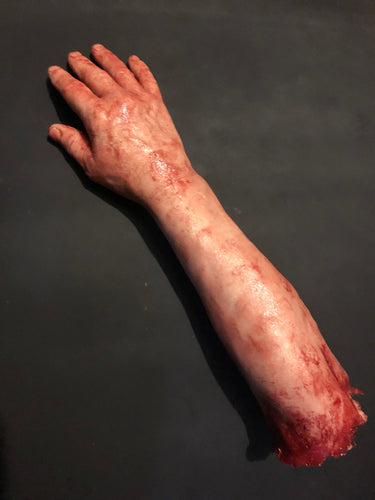Severed  male right arm