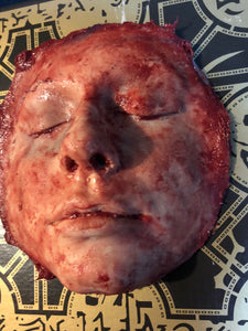 Skinned child's face