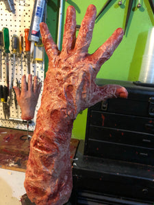 Burned victim arm