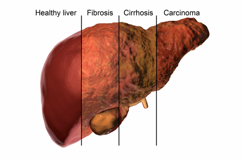 liver-detox-total-body-cleanse-cirrhosis-fibrosis-carcinoma