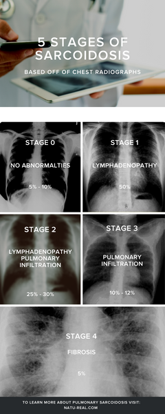 Stages of Pulmonary Sarcoidosis Natureal