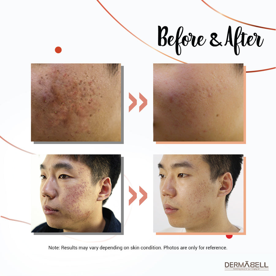 AC Line | Acne-Preventative Skincare | Before and After | Professional & Home-Use | DERMABELL