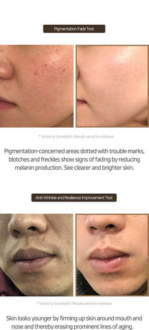 (FRECKLES, MELASMA) GALACTOMYCES PURE VITAMIN C GLOW (Good for 2-3 months) INFORMATION