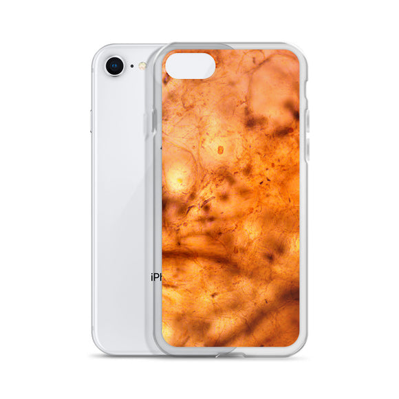 Peach Flesh iPhone Case