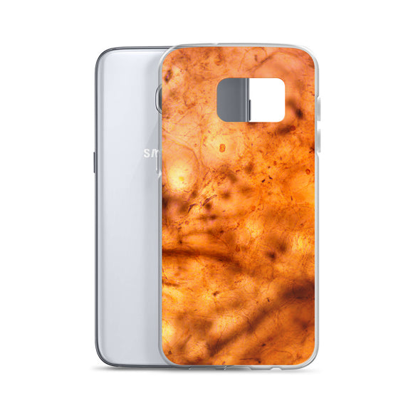 Peach Flesh Samsung Case