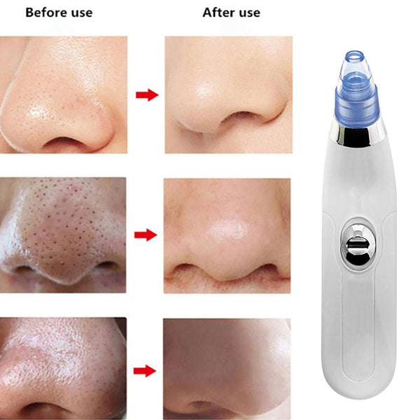 electric facial pore cleaner