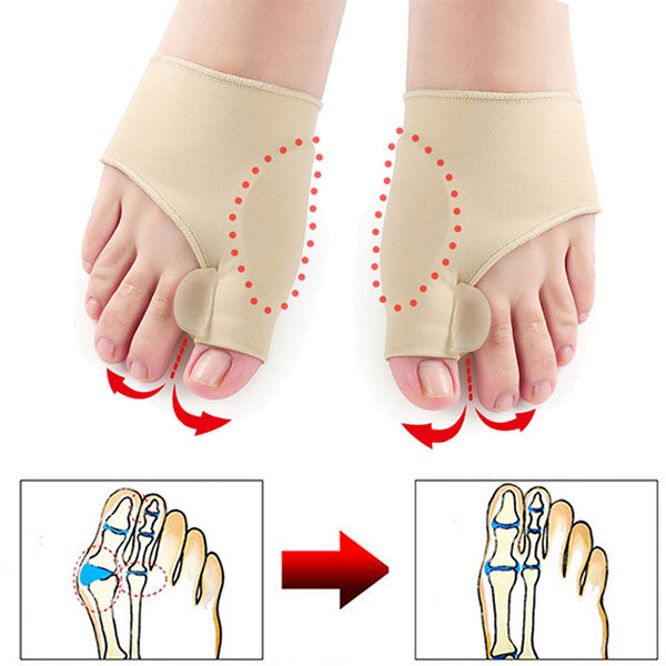 Toe Separator Correction Adjuster