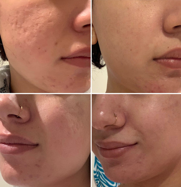 Acne Scar Results ( 5 days apart)