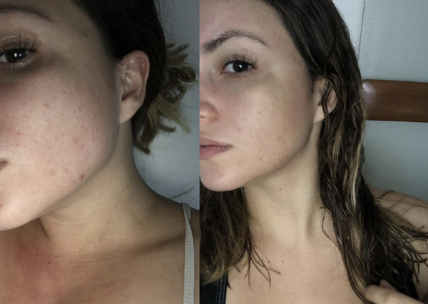 1 Day Face Results