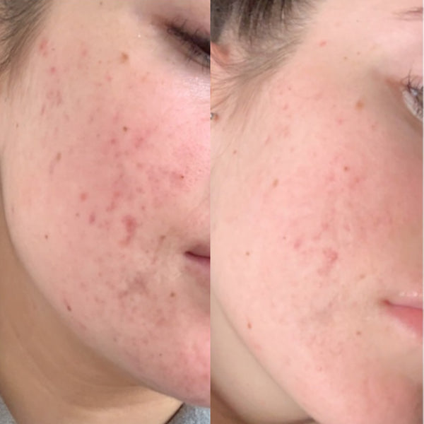 Hormonal Acne Results