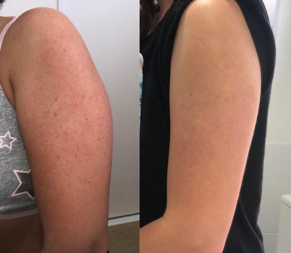 Keratosis Pilaris treated in 2 days