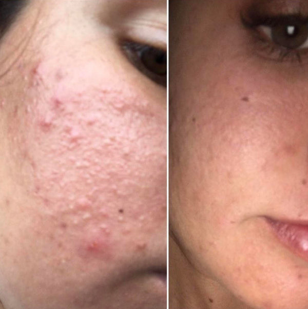 Hormonal Acne 7 Days results