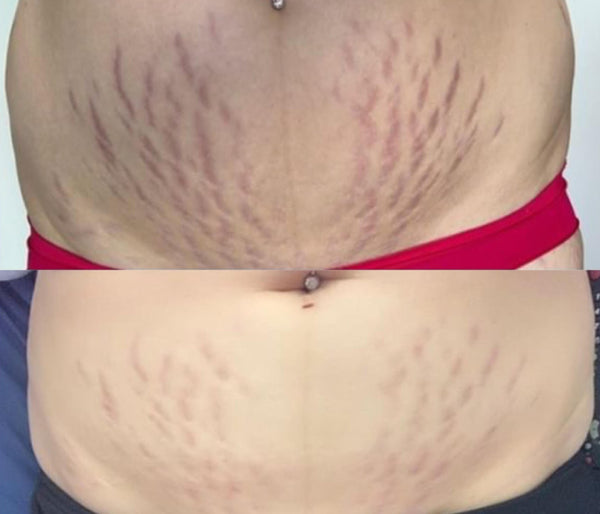Stretch Mark results in 3 weeks