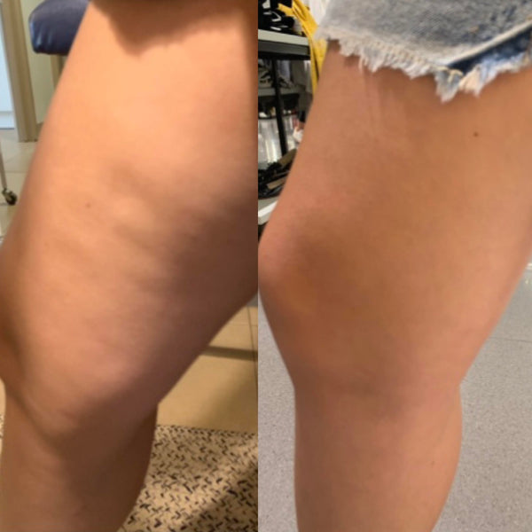 4 Week Cellulite Results