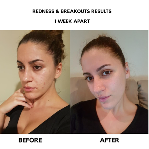 bangn body results redness breakouts scarring