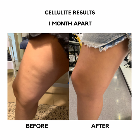 bangn body results cellulite