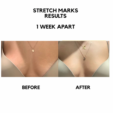 bangn body results stretch marks