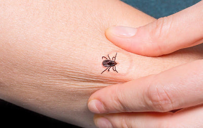 Tick Bite Prevention: 7 Ways to Protect Yourself in the Backyard or Wilderness