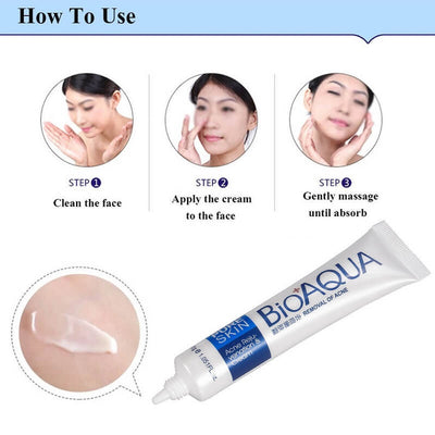 PURE SKIN Acne Scar Removal Rejuvenation Cream - BIOAQUA® OFFICIAL STORE
