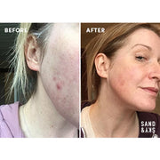 A woman's before and after picture, showing the effects of the exfoliating treatment.