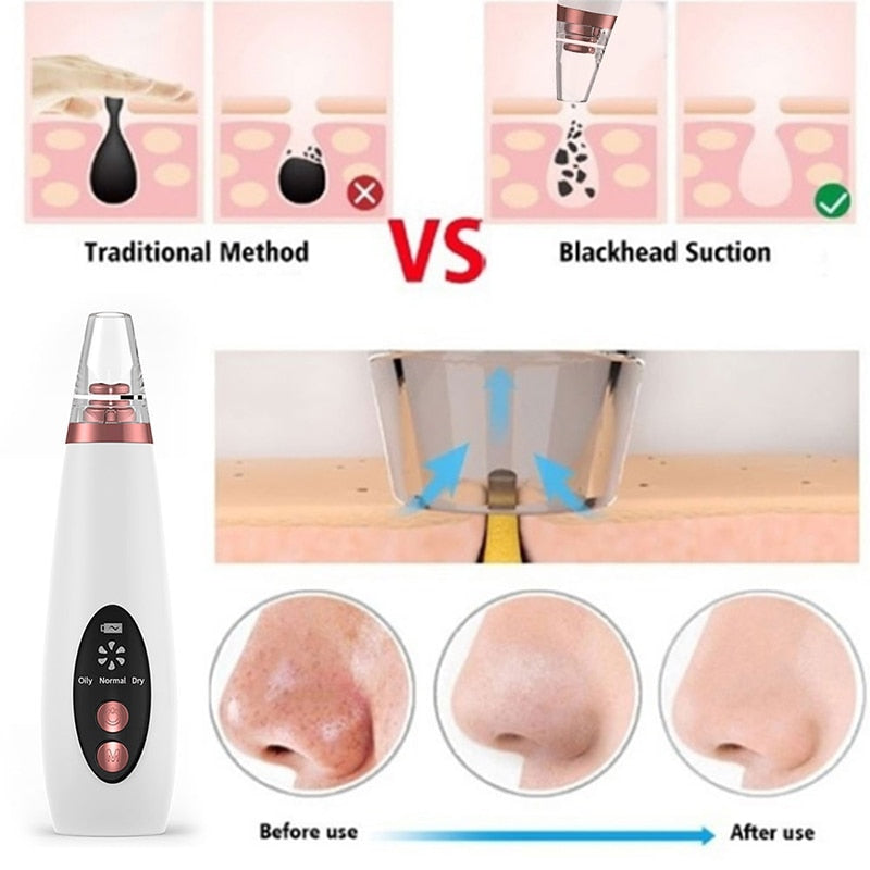 Pore Cleaner Blackhead Remover Vacuum Face Skin Care - peakmonk