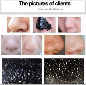Ultimate Charcoal Blackheads Mask - Buy 1 Take 1 & Free Shipping Today!