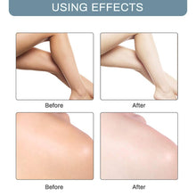 Load image into Gallery viewer, Body Creams Armpit Whitening Cream Between Legs Knees Private Parts Whitening Formula Armpit Whitener Intimate Bleach Bellezon - Fresh Deals Shop