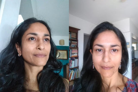 Shikha's Skin Before and After using the Skin Brightening Serum for 7 days