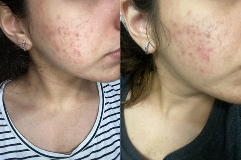 Karen's Skin Before and After using the Skin Brightening Serum for 7 days