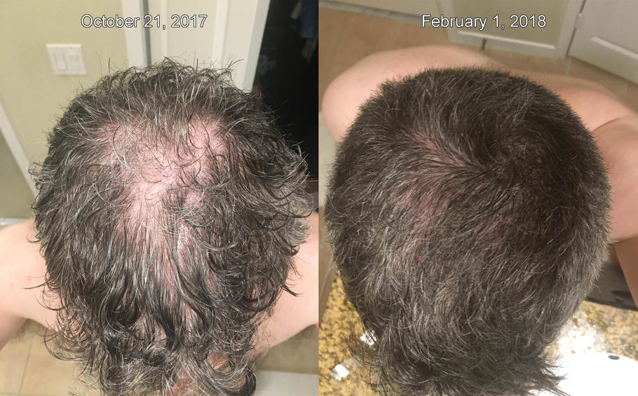 The BEST Before/After Microneedling and Derma Roller Results For Hair Loss!