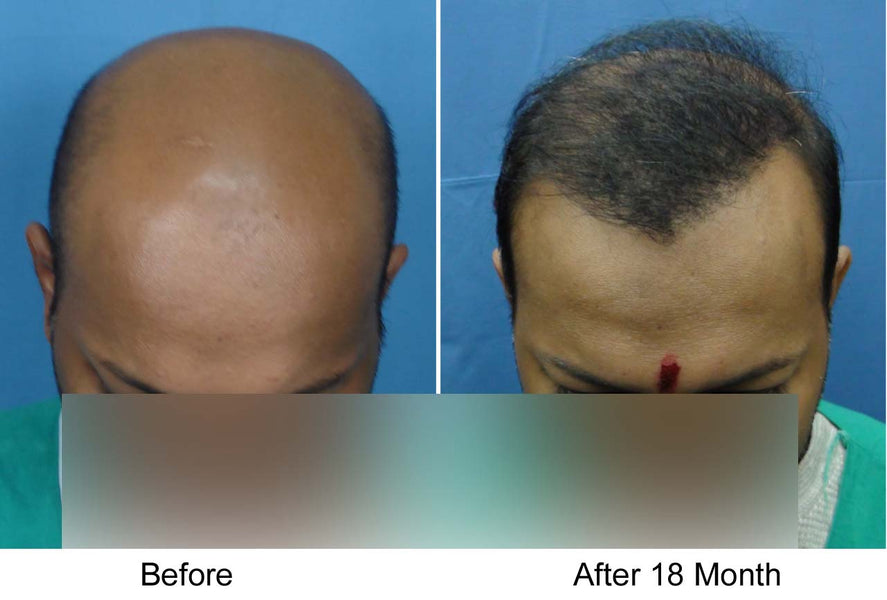 Body Hair Transplant (BHT) on the Scalp