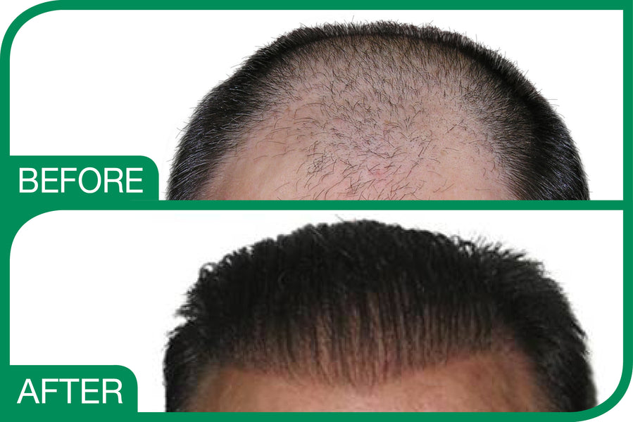 BioFiber Hair – Artificial Hair Transplant?