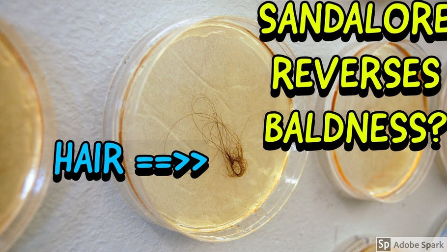 Sandalore Regrows Hair!