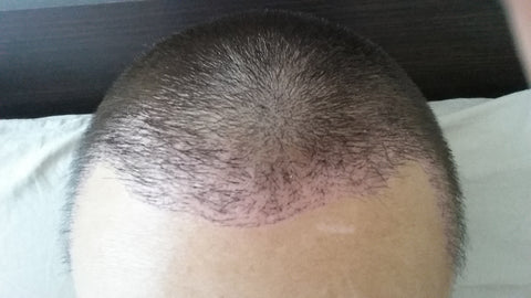hair transplant recipient zone