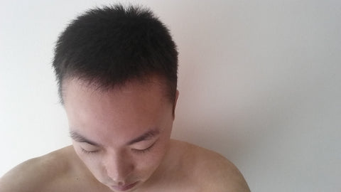 hair transplant hair growth