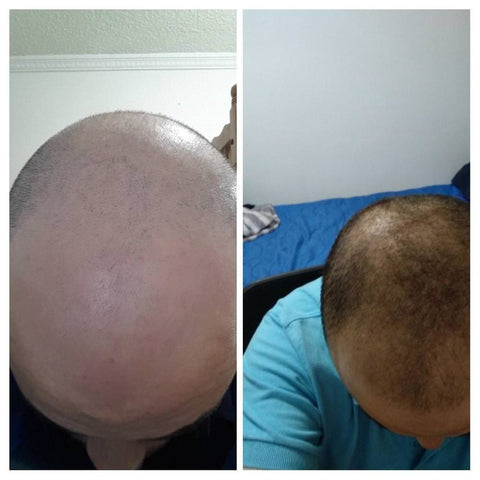 microneedling hair growth