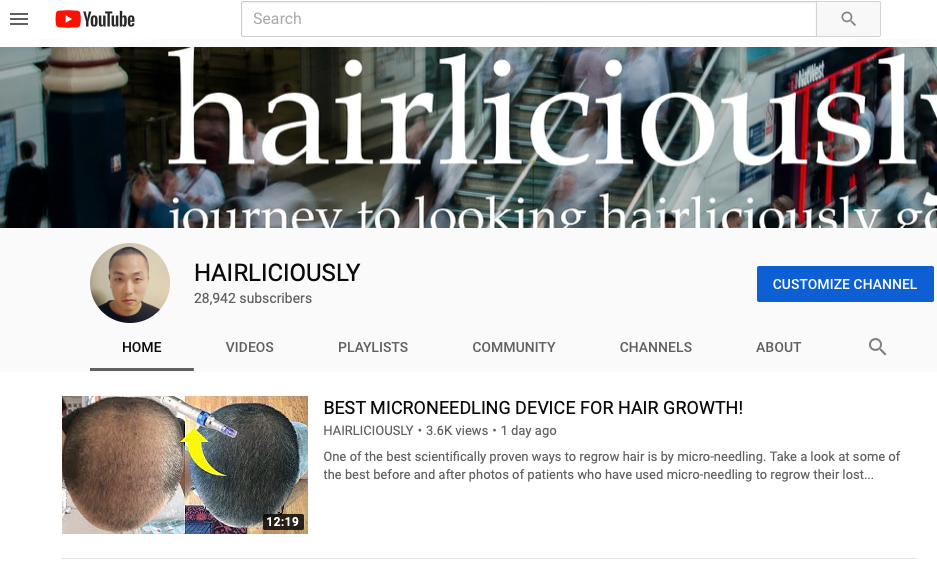hairliciously youtube hair transplant