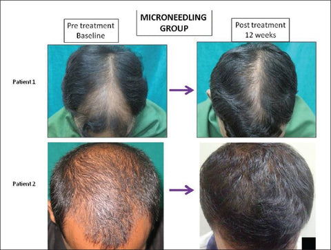 dr Dhurat microneedling minoxidil hair growth
