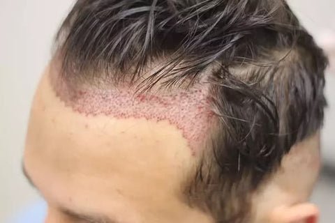hair transplant post op