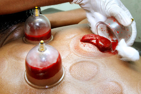 Hijama therapy hair growth