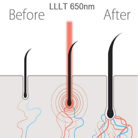 LLLT hair growth